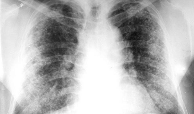 Острый и хронический диссеминированный (распространенный) туберкулез легких