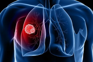 Туберкулема легких – инфекционная опухоль