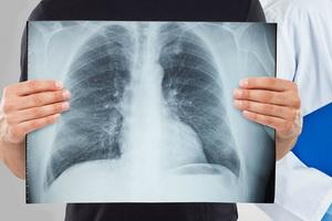 Кавернозная и фиброзно-кавернозная форма развития туберкулеза легких