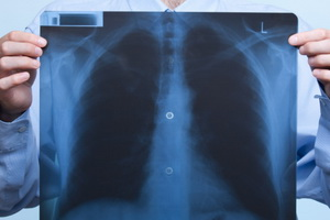 Цирротический туберкулез легких – неблагоприятный прогноз