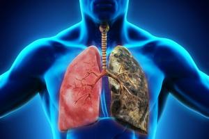 Клиническая медицинская классификация туберкулеза